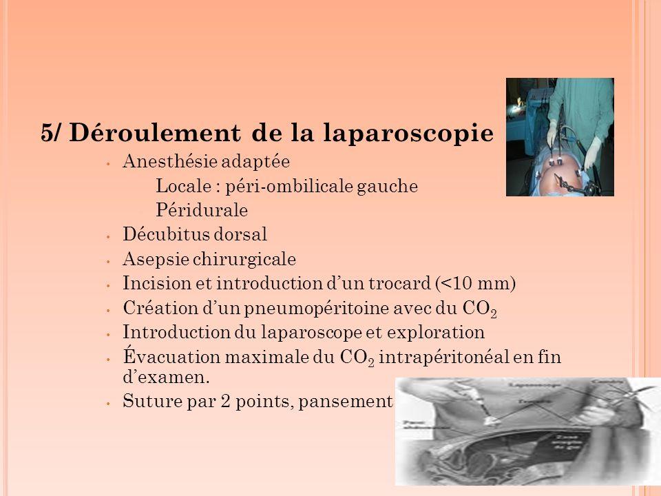 5/ Déroulement de la laparoscopie