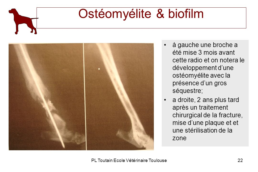 Ostéomyélite & biofilm