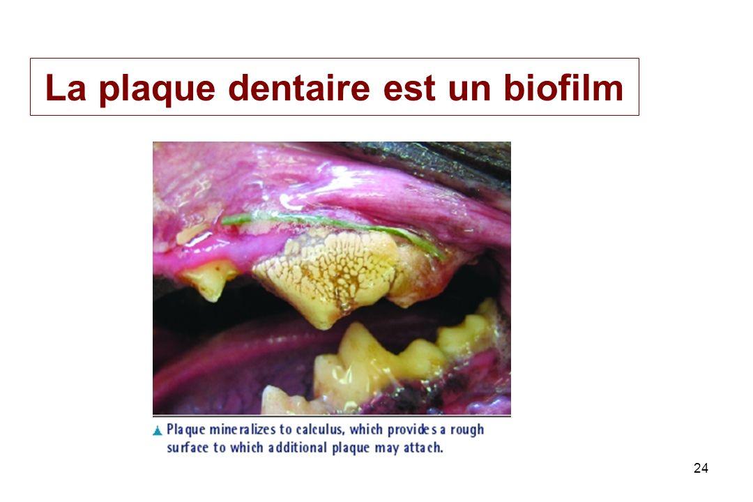La plaque dentaire est un biofilm