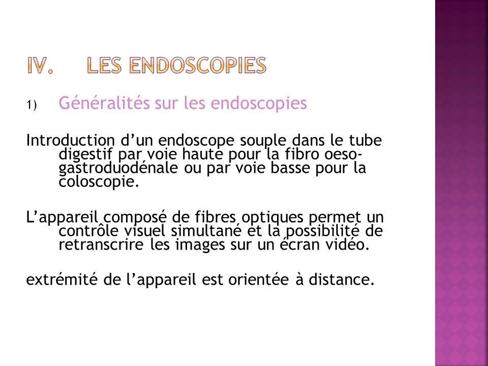 Les endoscopies Généralités sur les endoscopies
