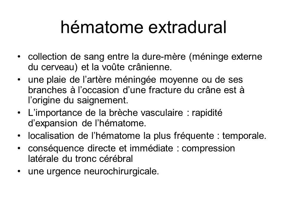 hématome extradural collection de sang entre la dure-mère (méninge externe du cerveau) et la voûte crânienne.
