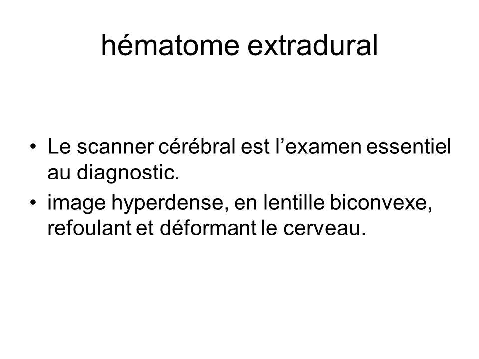 hématome extradural Le scanner cérébral est l'examen essentiel au diagnostic.