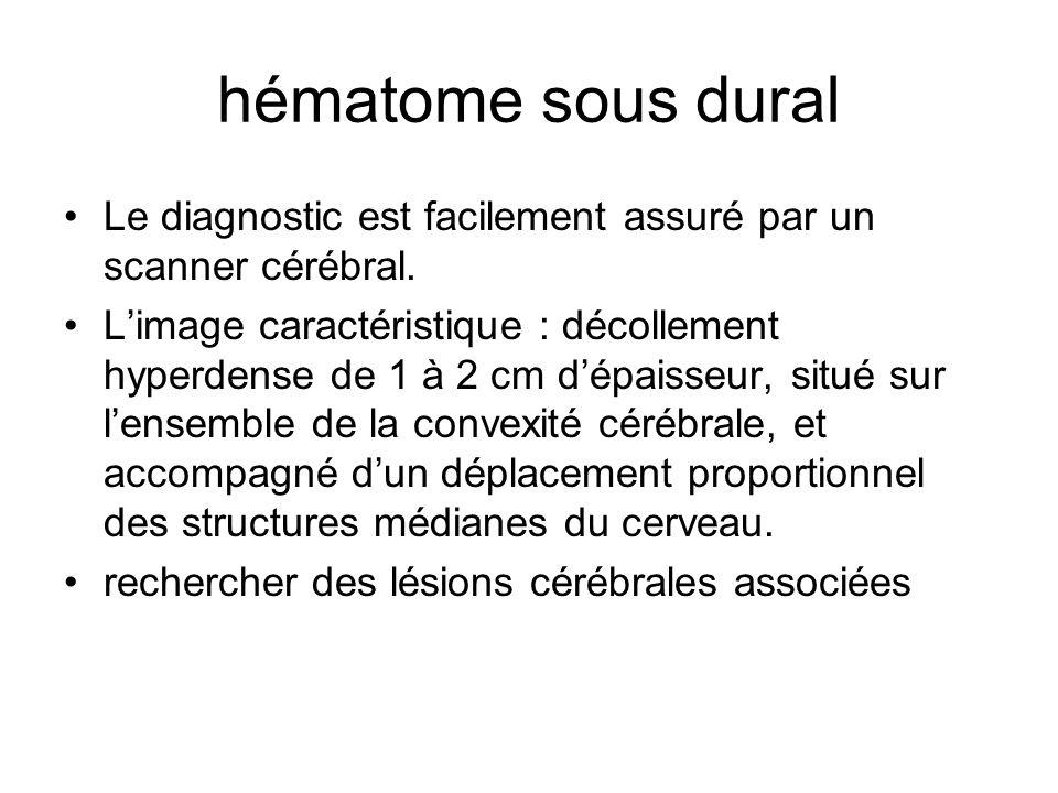hématome sous dural Le diagnostic est facilement assuré par un scanner cérébral.