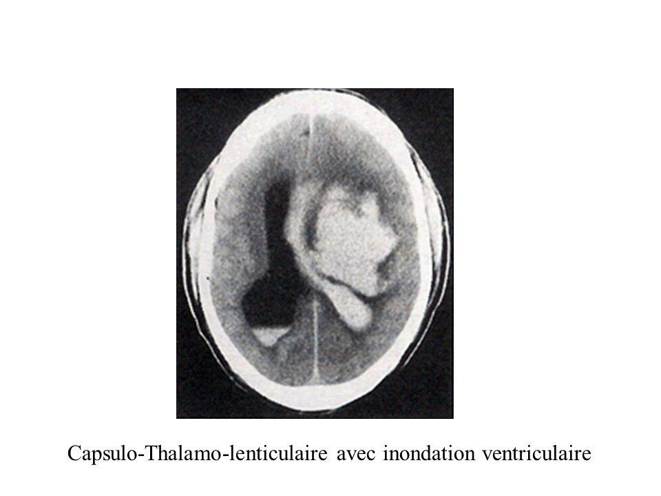 Capsulo-Thalamo-lenticulaire avec inondation ventriculaire