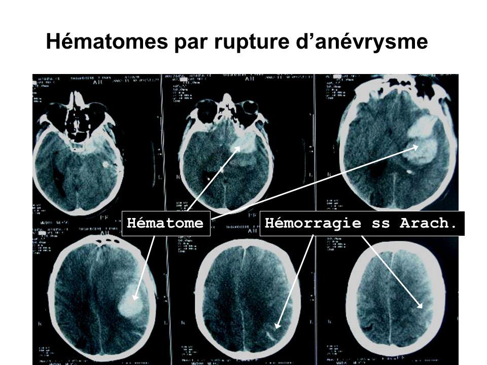 Hématomes par rupture d'anévrysme