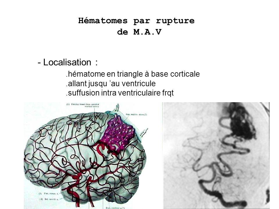 Hématomes par rupture de M.A.V