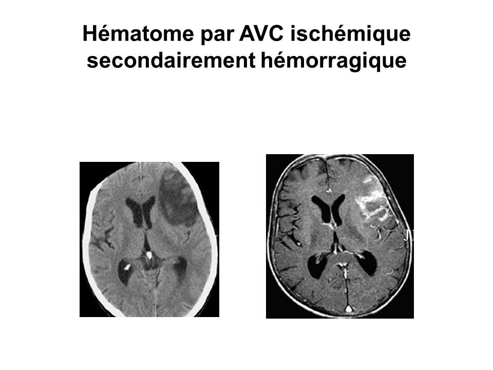 Hématome par AVC ischémique secondairement hémorragique