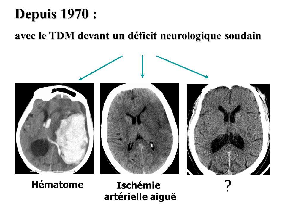 Depuis 1970 : avec le TDM devant un déficit neurologique soudain