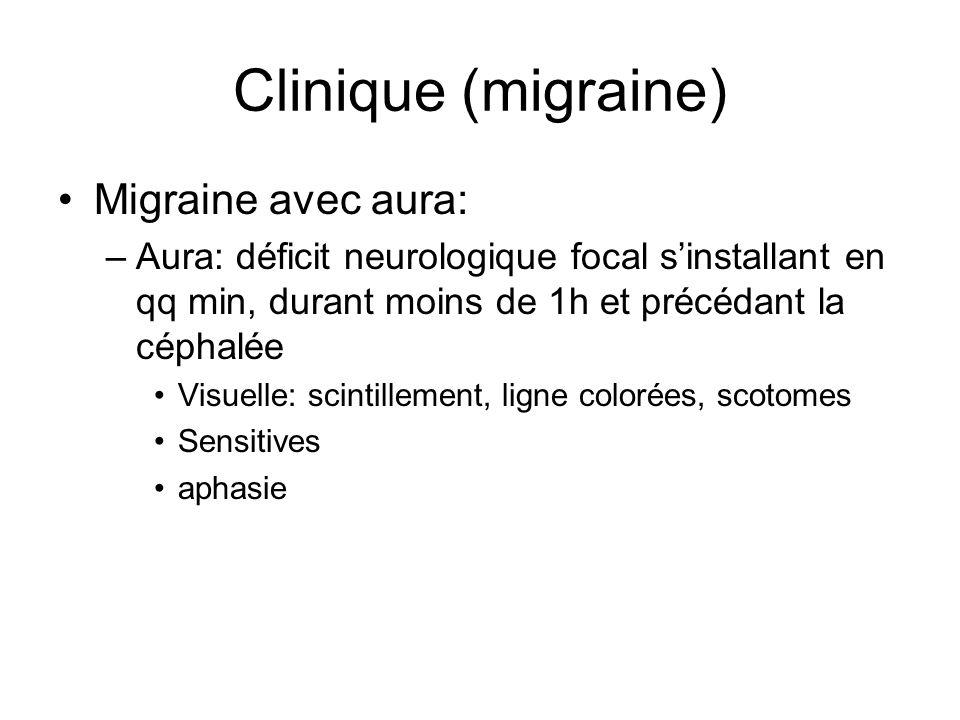 Clinique (migraine) Migraine avec aura: