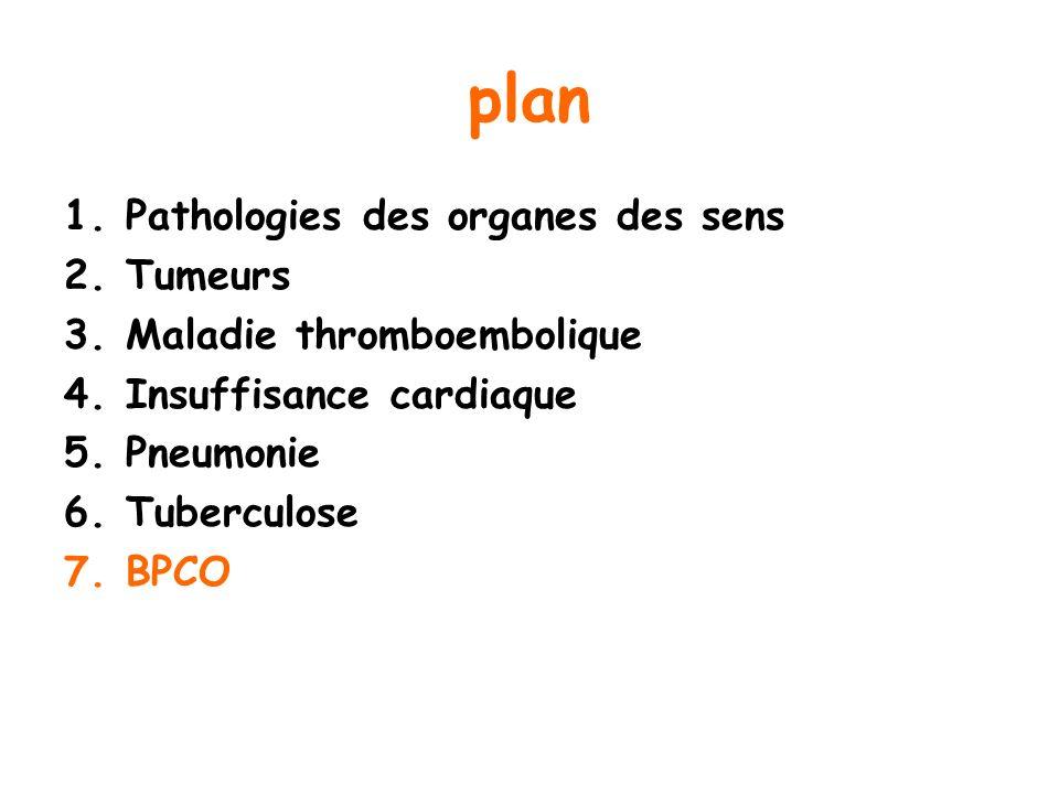 plan Pathologies des organes des sens Tumeurs Maladie thromboembolique