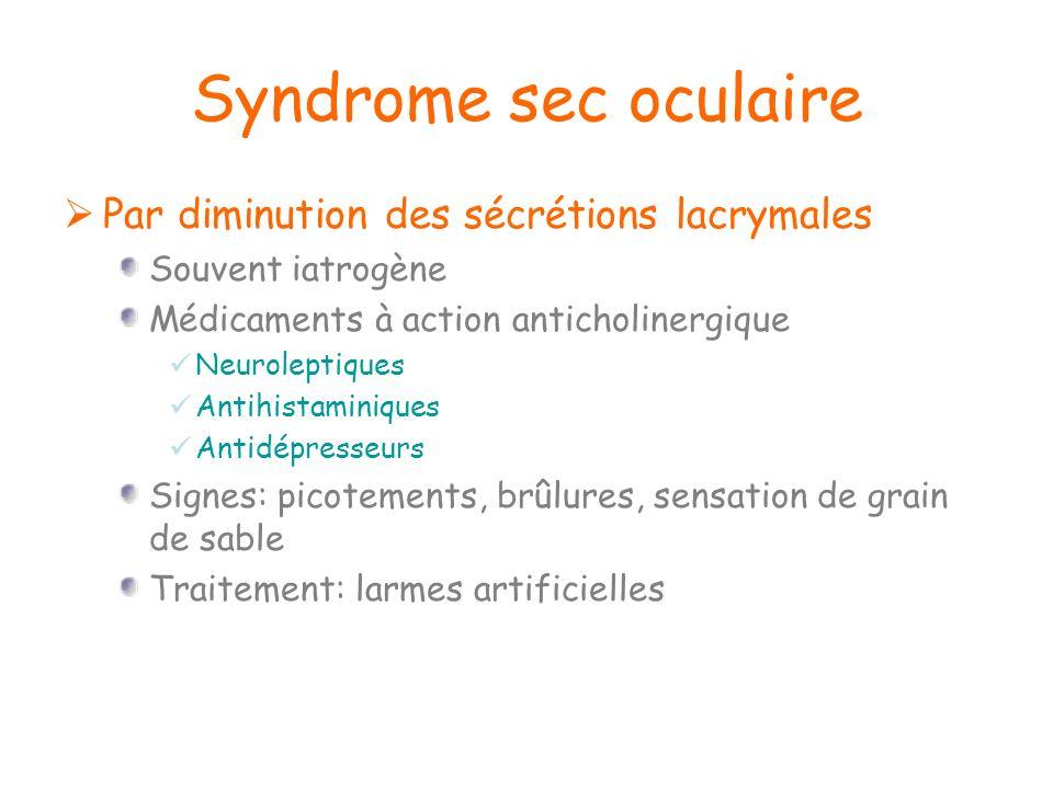 Syndrome sec oculaire Par diminution des sécrétions lacrymales