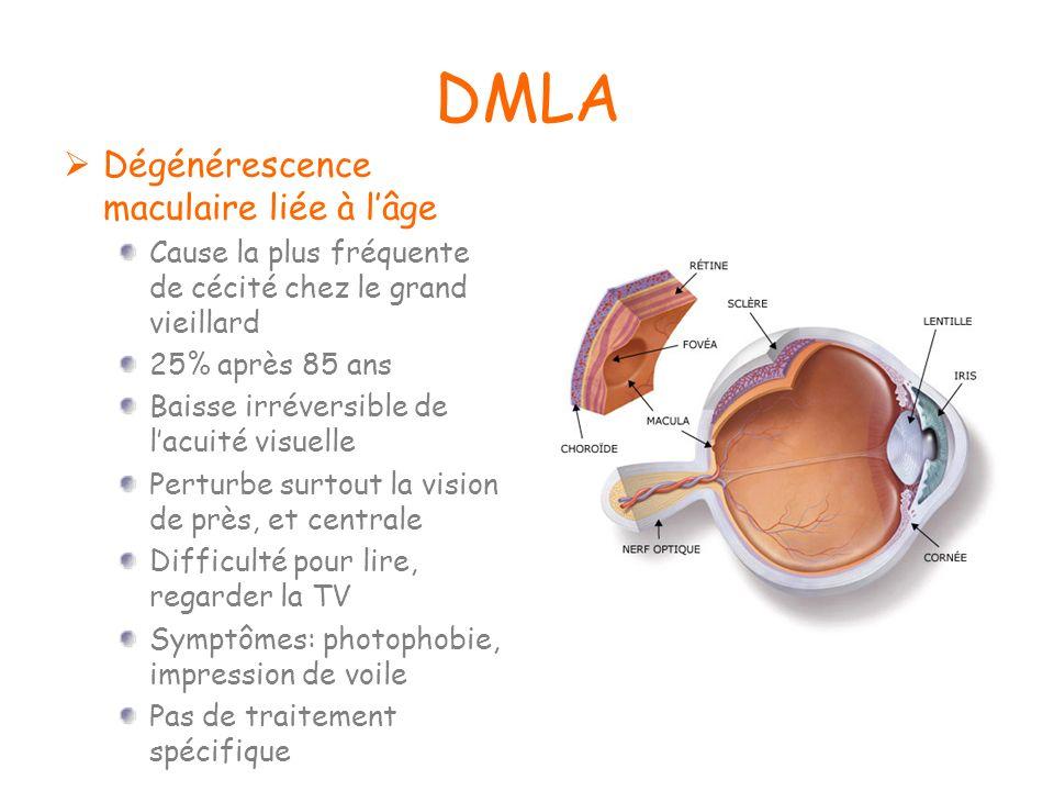 DMLA Dégénérescence maculaire liée à l'âge