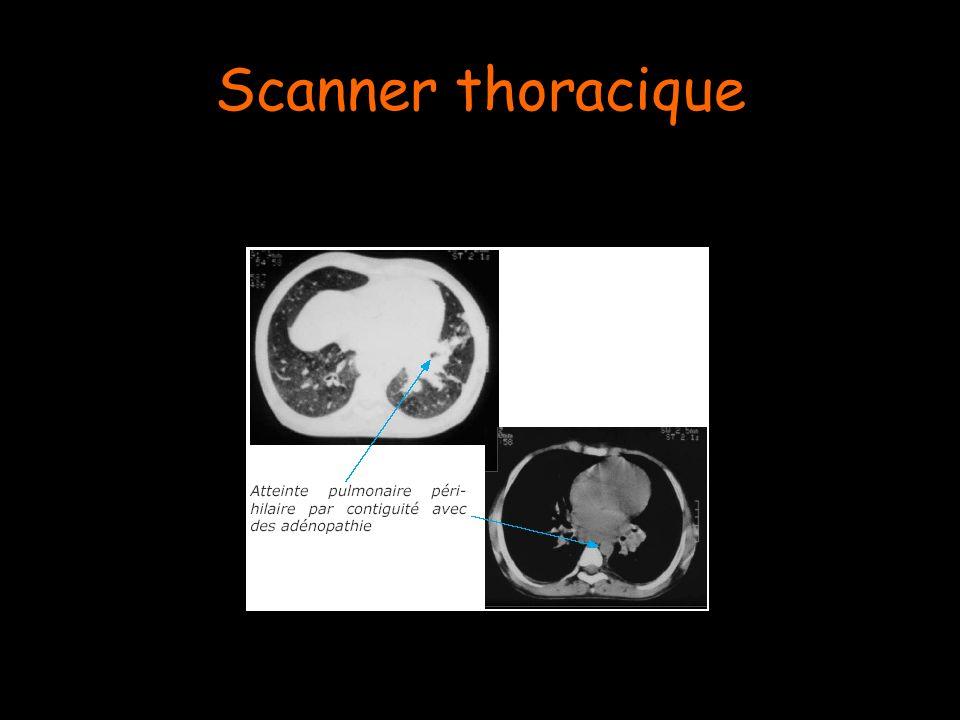 Scanner thoracique