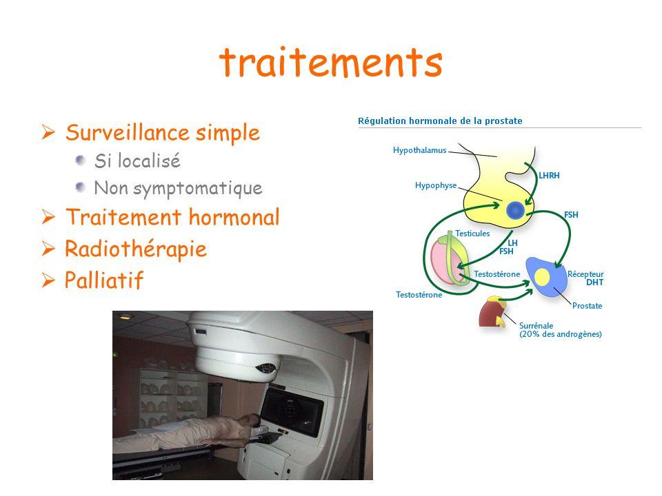 traitements Surveillance simple Traitement hormonal Radiothérapie
