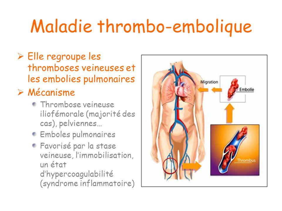 Maladie thrombo-embolique