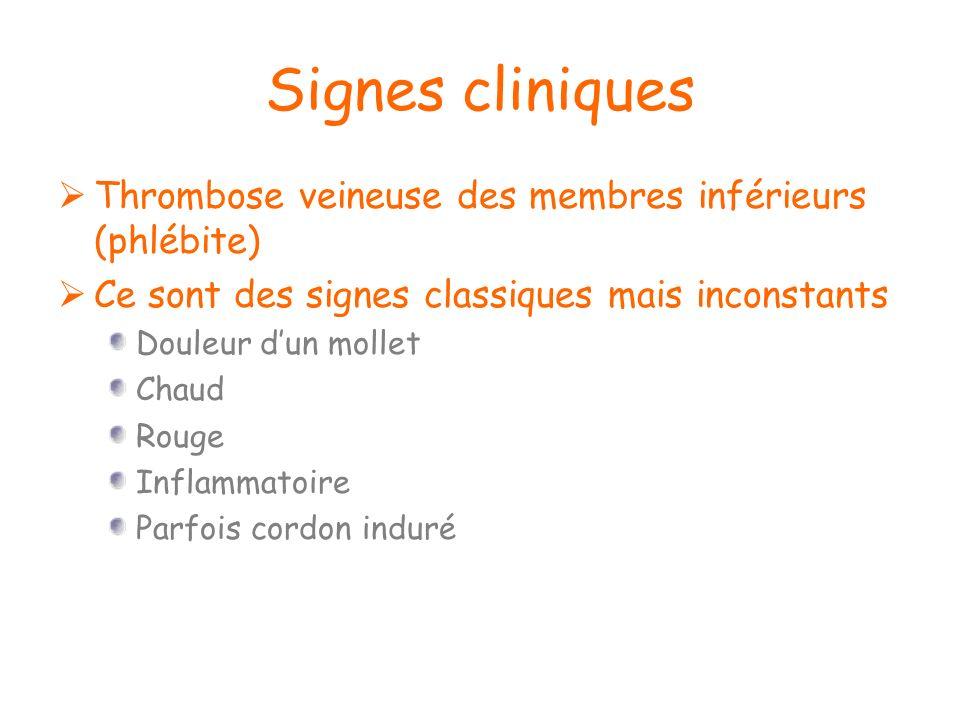 Signes cliniques Thrombose veineuse des membres inférieurs (phlébite)