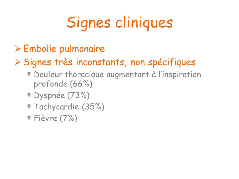Signes cliniques Embolie pulmonaire