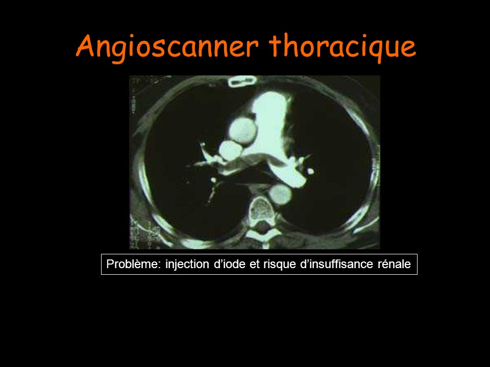 Angioscanner thoracique