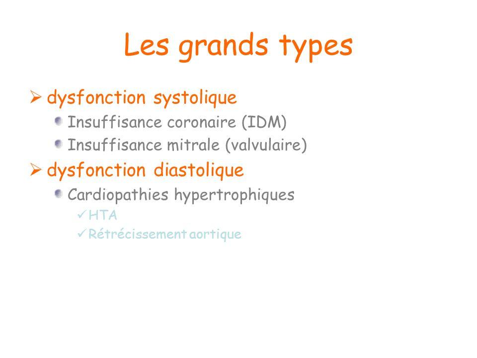 Les grands types dysfonction systolique dysfonction diastolique