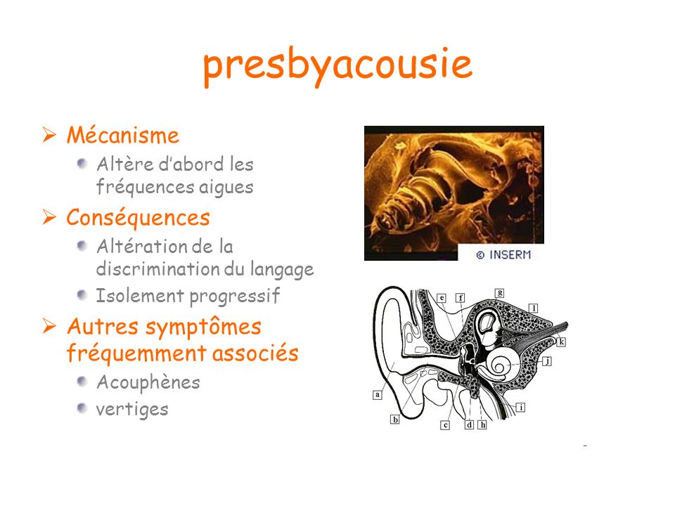 presbyacousie Mécanisme Conséquences