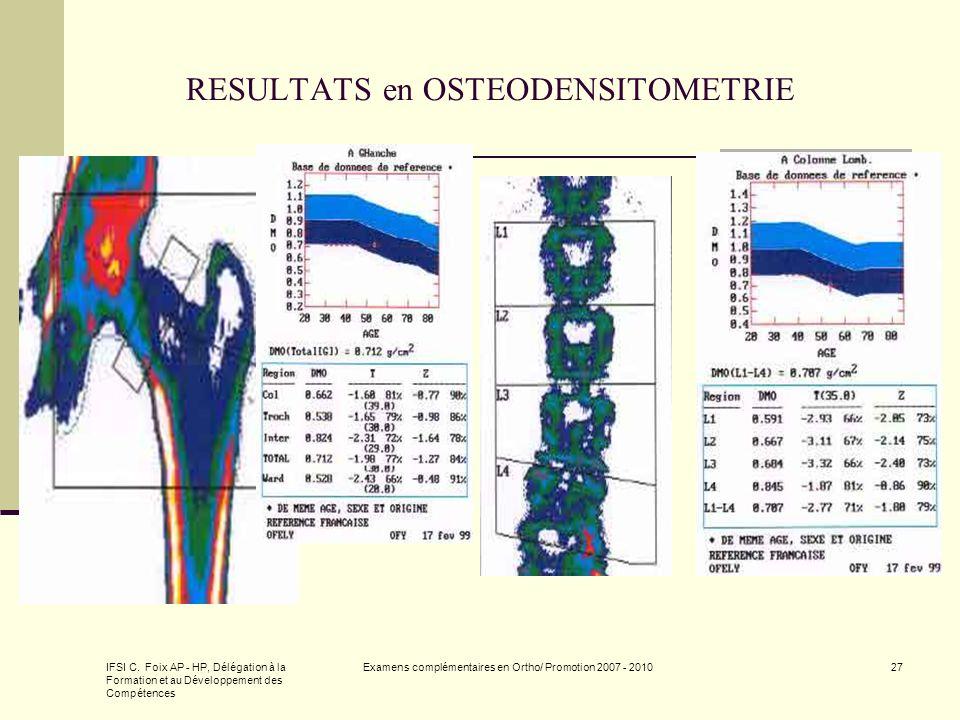 RESULTATS en OSTEODENSITOMETRIE