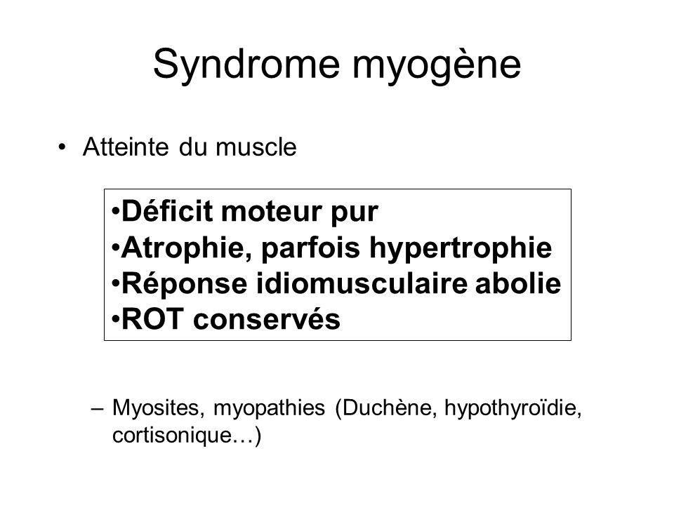 Syndrome myogène Déficit moteur pur Atrophie, parfois hypertrophie