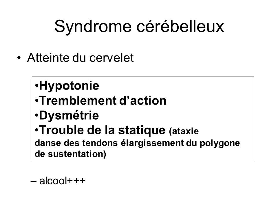 Syndrome cérébelleux Atteinte du cervelet Hypotonie