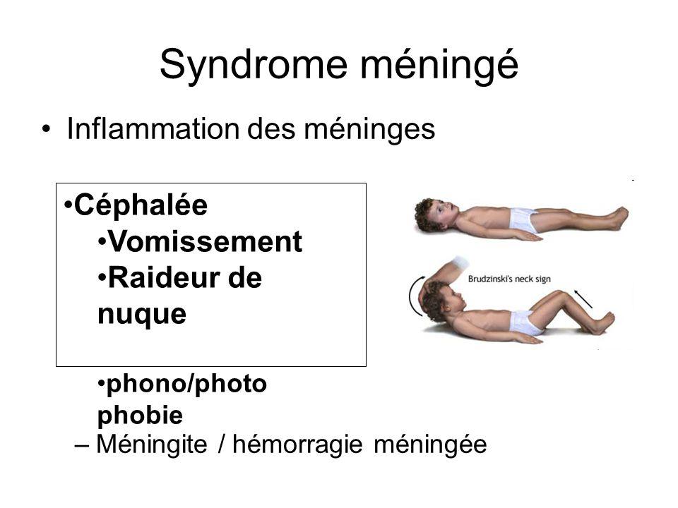 Syndrome méningé Inflammation des méninges Céphalée Vomissement