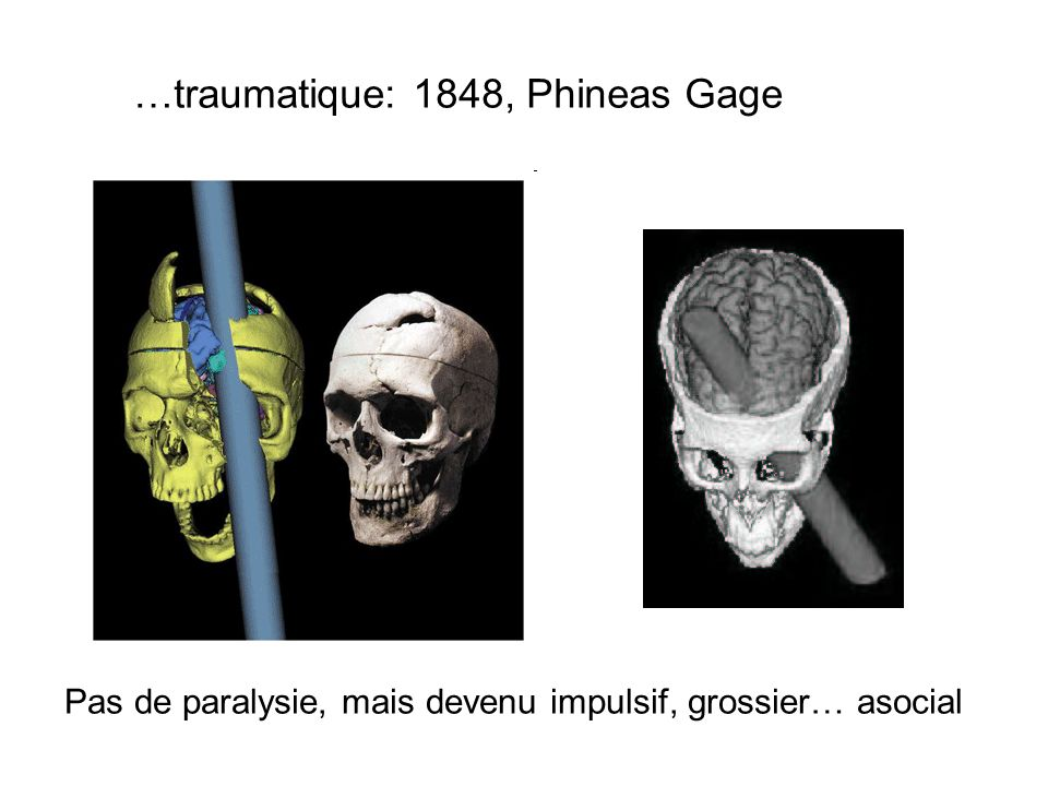 …traumatique: 1848, Phineas Gage