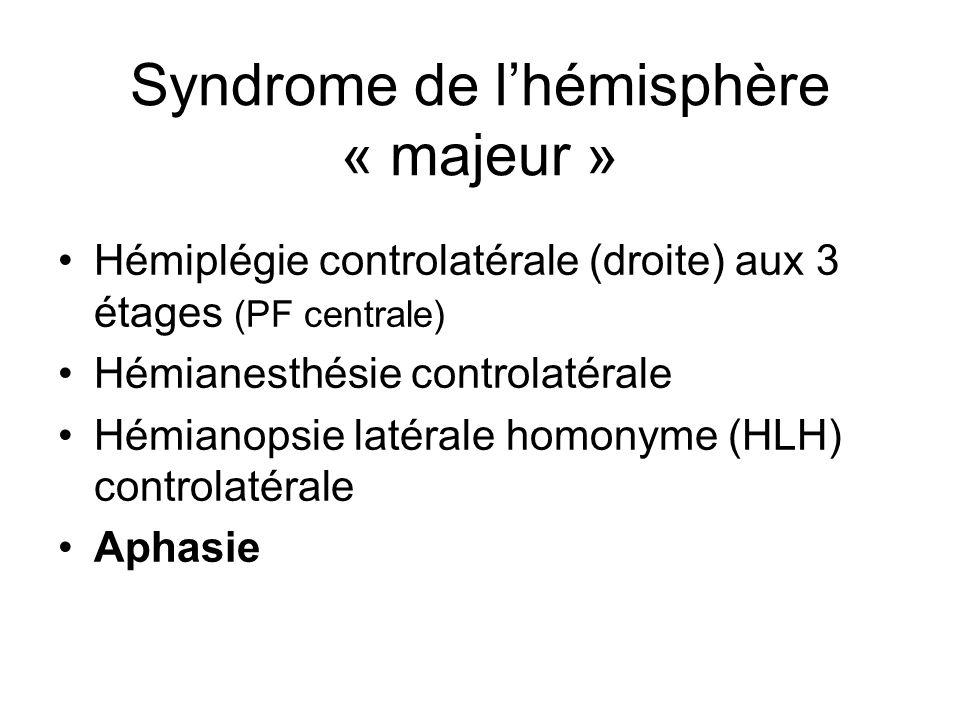 Syndrome de l'hémisphère « majeur »