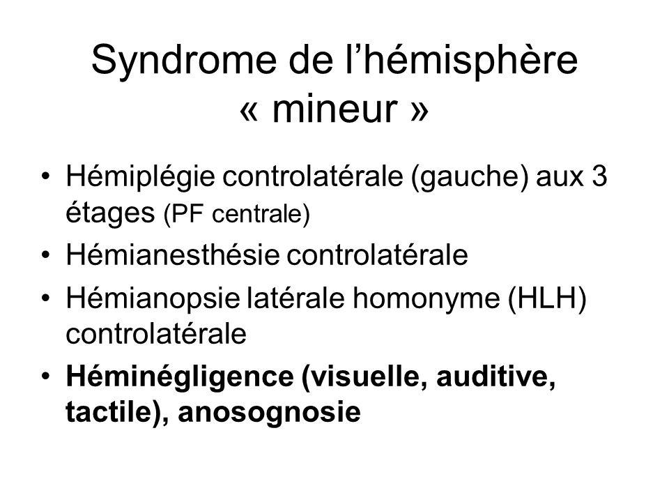 Syndrome de l'hémisphère « mineur »