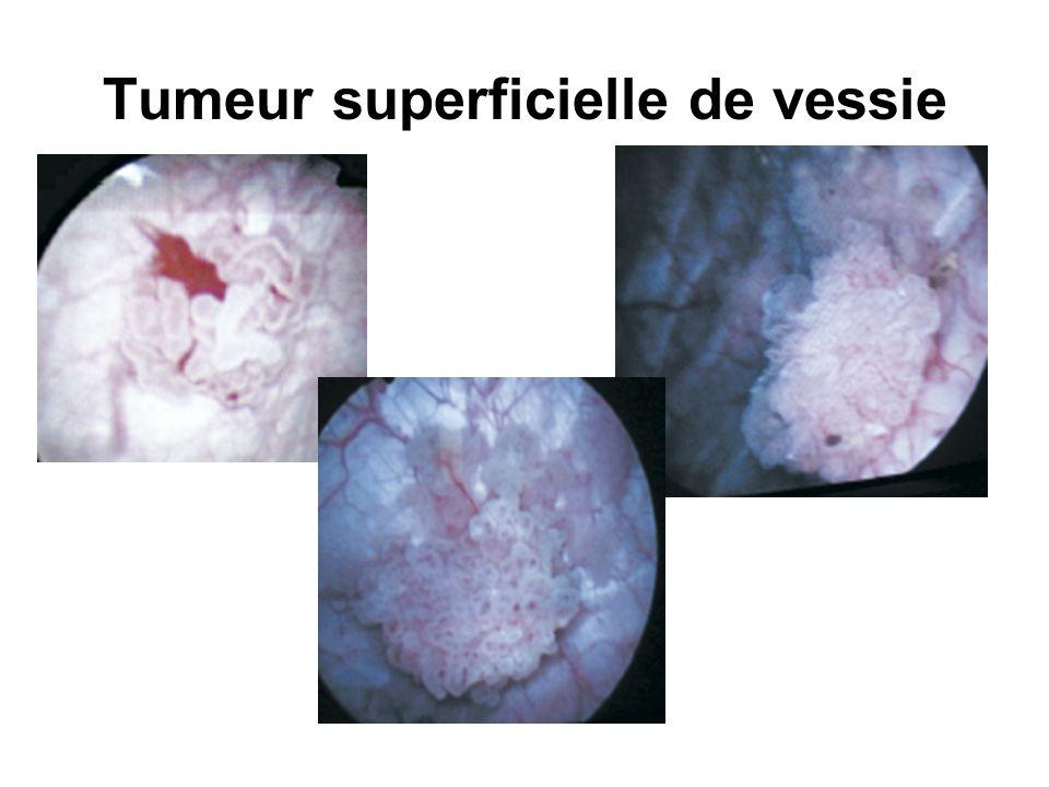 Tumeur superficielle de vessie