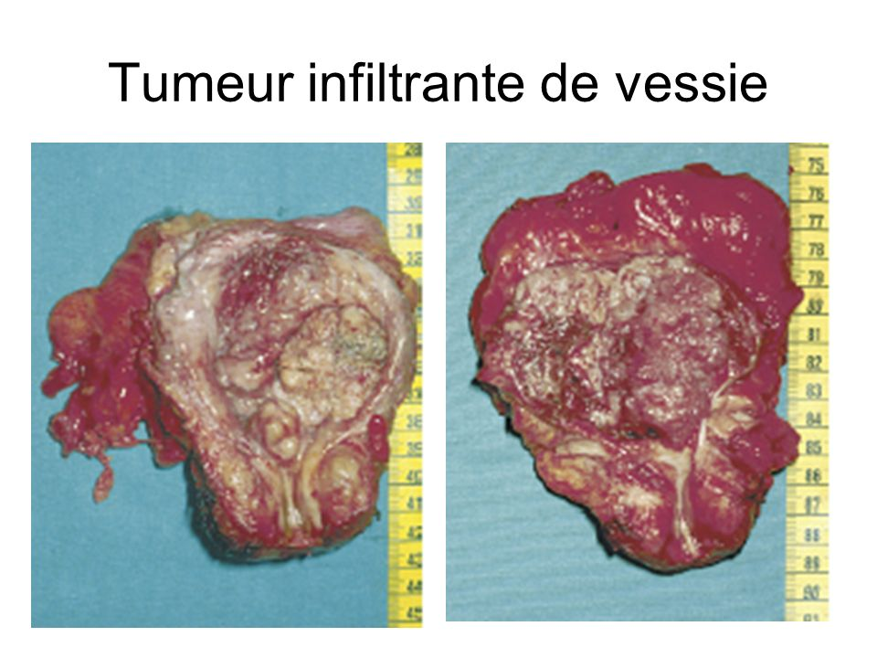 Tumeur infiltrante de vessie