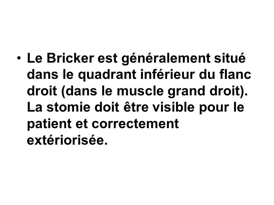 Le Bricker est généralement situé dans le quadrant inférieur du flanc droit (dans le muscle grand droit).