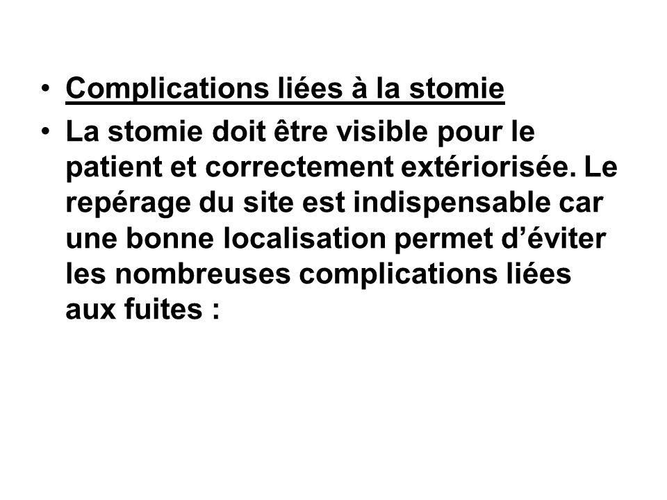 Complications liées à la stomie