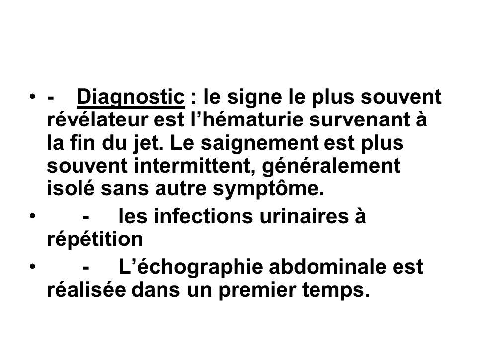 - Diagnostic : le signe le plus souvent révélateur est l'hématurie survenant à la fin du jet. Le saignement est plus souvent intermittent, généralement isolé sans autre symptôme.