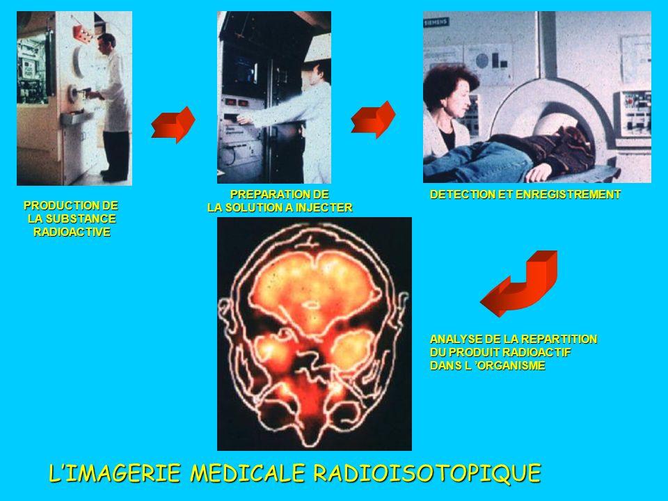 L'IMAGERIE MEDICALE RADIOISOTOPIQUE