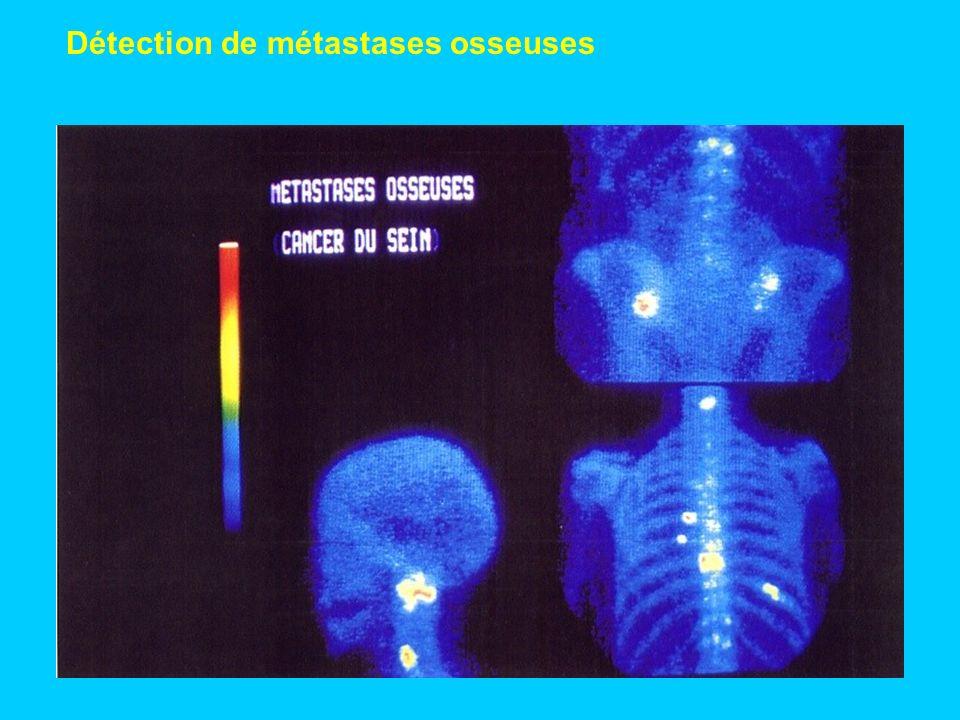 Détection de métastases osseuses
