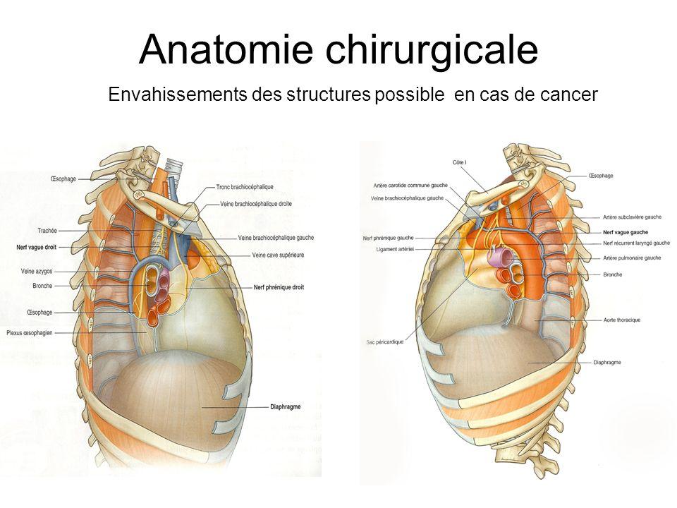 Anatomie chirurgicale