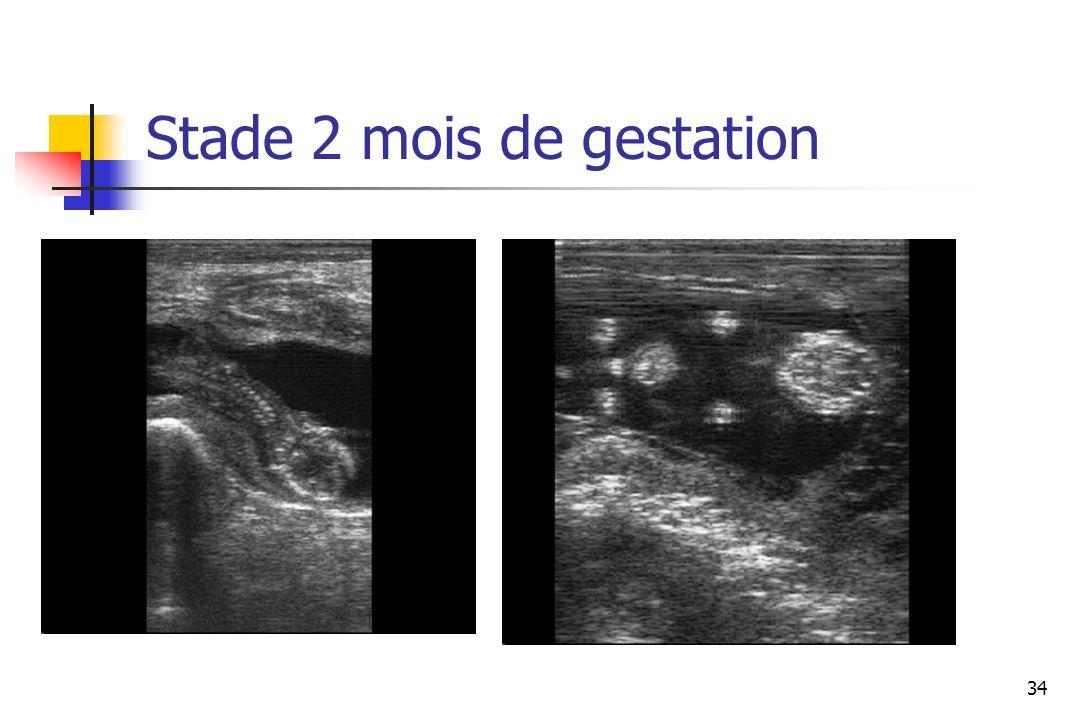 Stade 2 mois de gestation