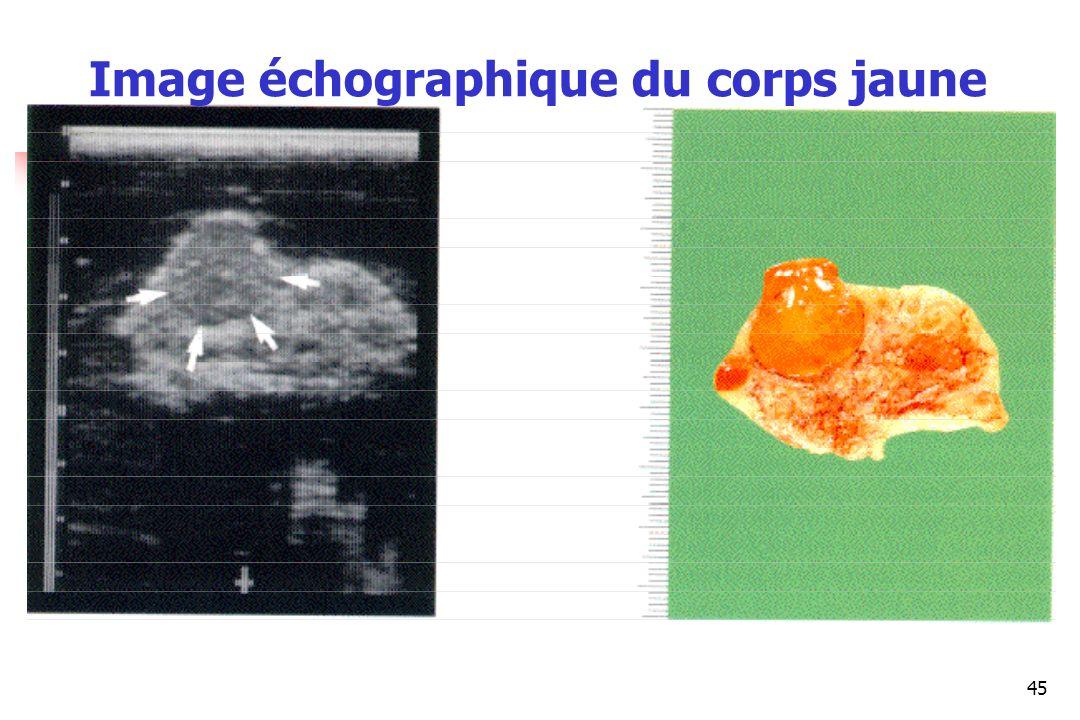 Image échographique du corps jaune