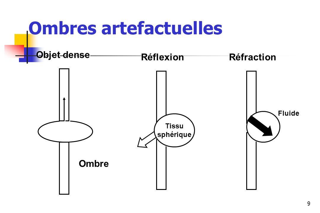 Ombres artefactuelles