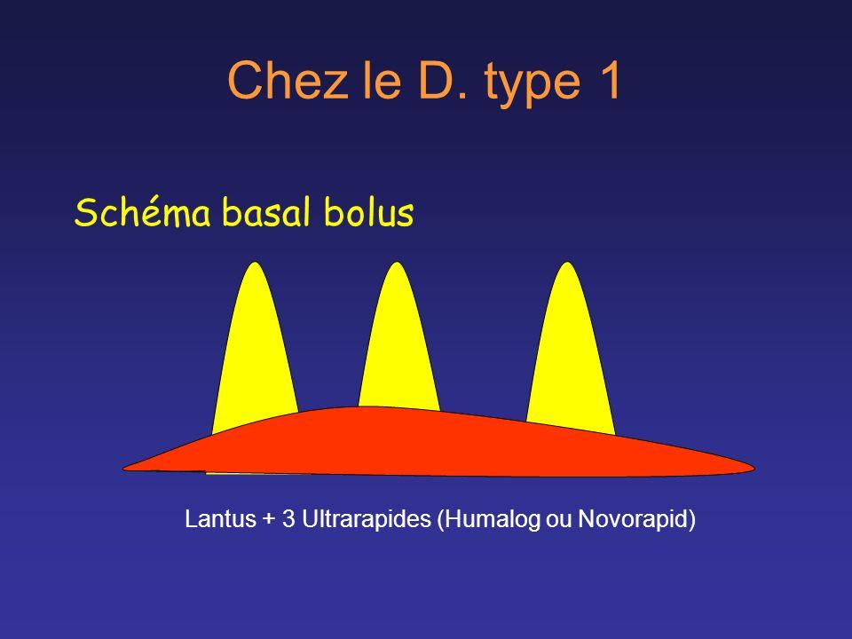 Chez le D. type 1 Schéma basal bolus