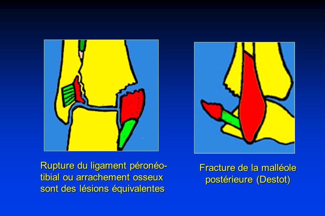 Fracture de la malléole postérieure (Destot)