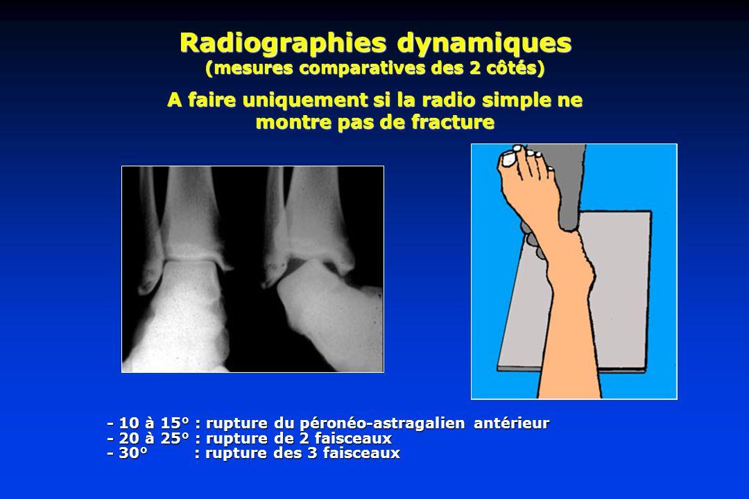 Radiographies dynamiques (mesures comparatives des 2 côtés)