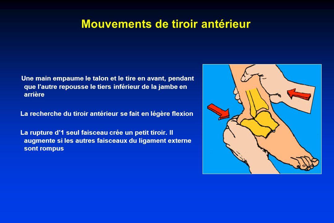 Mouvements de tiroir antérieur