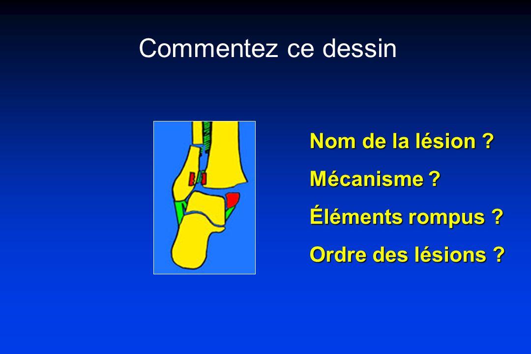 Commentez ce dessin Nom de la lésion Mécanisme Éléments rompus