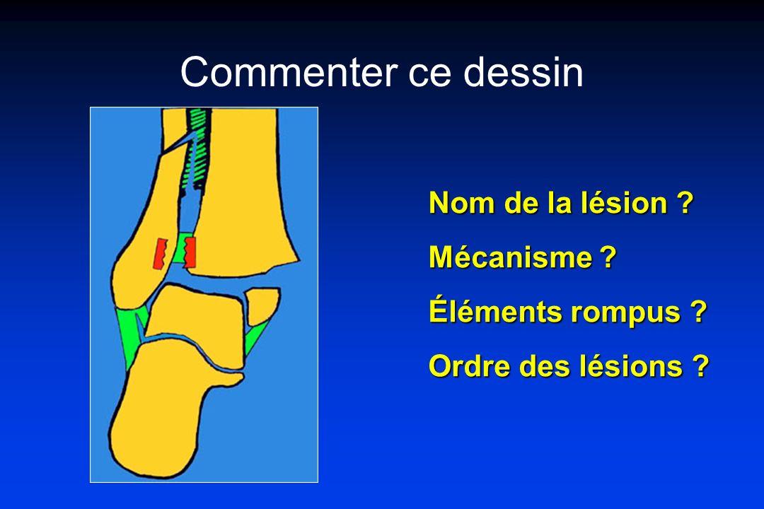 Commenter ce dessin Nom de la lésion Mécanisme Éléments rompus