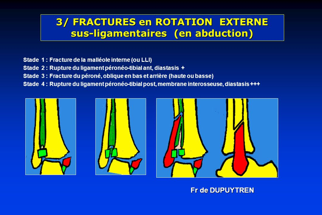 3/ FRACTURES en ROTATION EXTERNE sus-ligamentaires (en abduction)