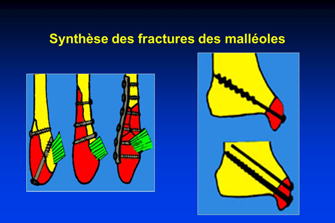 Synthèse des fractures des malléoles